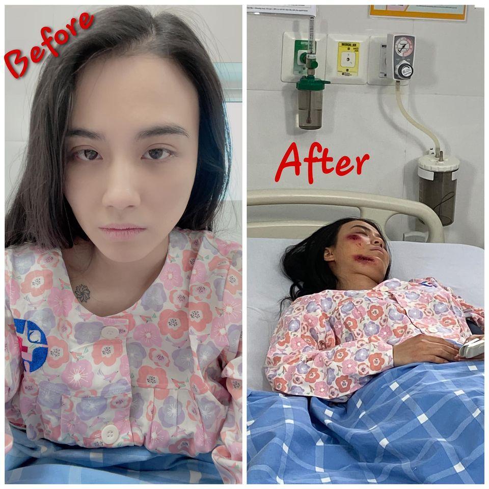 Hé lộ thêm loạt ảnh Linh Miu bị đánh bầm dập, nằm bất động trên giường bệnh-3