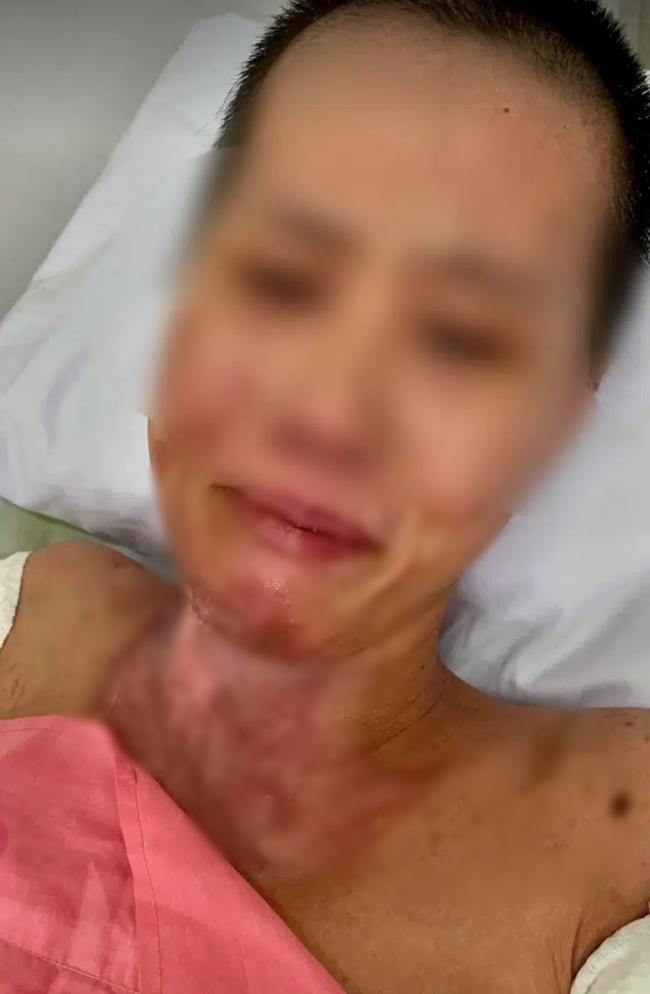 Bến Tre: Chồng tẩm xăng thiêu sống vợ sau cơn cuồng ghen-2