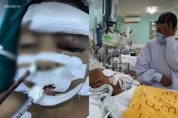 Đau xót gia cảnh bé trai 4 tuổi bị dượng đâm xuyên mắt: Cha vừa bị bác họ sát hại 4 tháng trước