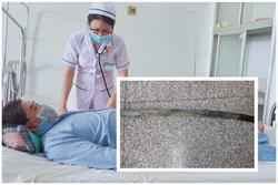 Đang tắm gặp nạn, người đàn ông bị cây gỗ đâm xuyên từ mông lên bụng