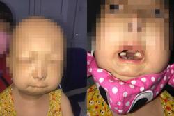 Bé gái Thái Bình 6 tuổi đã bị lão hóa như người già