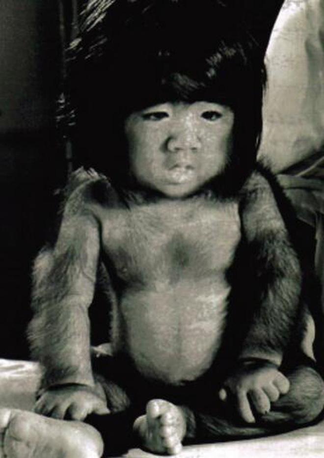 Cậu bé người vượn sinh ra toàn thân phủ đầy lông, bị gia đình ghét bỏ gây bất ngờ với cuộc sống hiện tại-1
