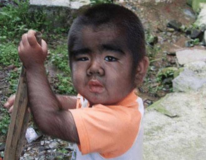 Cậu bé người vượn sinh ra toàn thân phủ đầy lông, bị gia đình ghét bỏ gây bất ngờ với cuộc sống hiện tại-2