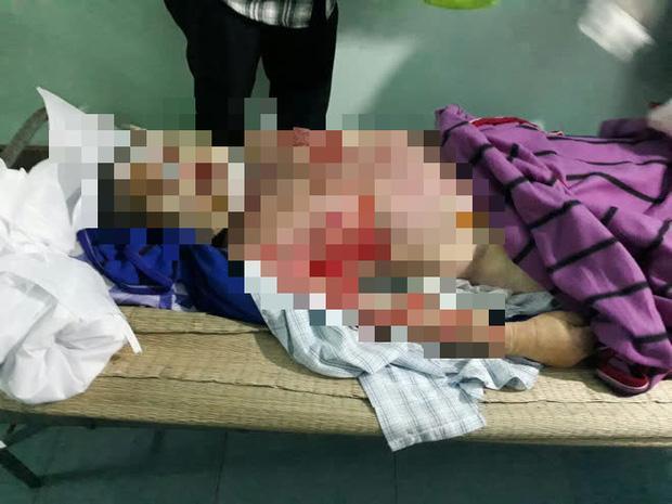 Người đàn ông bị lột da toàn thân, tử vong bất thường sau khi đi xông hơi-2