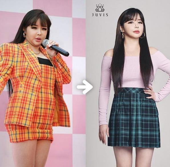 Trước khi bóc bé mỡ 11kg, Park Bom trông đáng sợ đến thế nào?-1