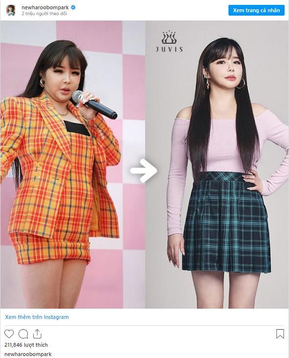 Park Bom lột xác đỉnh của chóp sau khi giảm 11kg khiến dân tình choáng váng-3