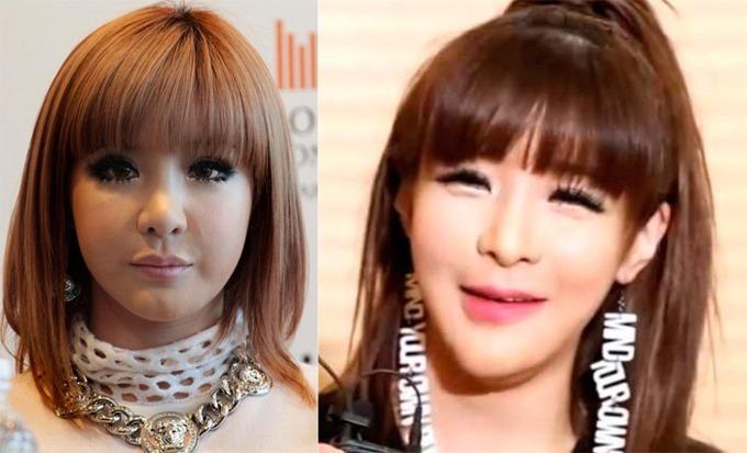 Trước khi bóc bé mỡ 11kg, Park Bom trông đáng sợ đến thế nào?-6