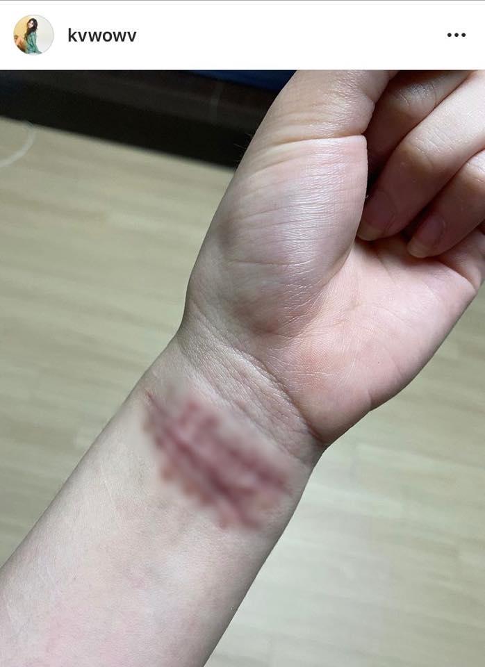 Tiết lộ tình trạng của Jimin AOA sau scandal bắt nạt chấn động-2