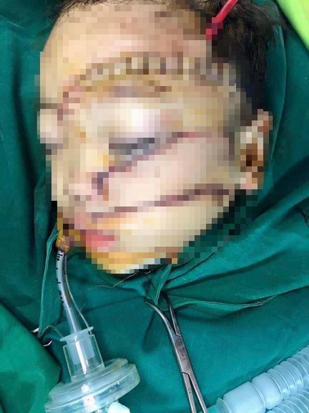 Bé trai 5 tuổi bị bố chém khâu hơn 300 mũi, bệnh viện cấp cứu mức báo động đỏ-1