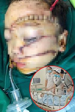 Bé trai 5 tuổi bị bố chém khâu hơn 300 mũi, bệnh viện cấp cứu mức 'báo động đỏ'