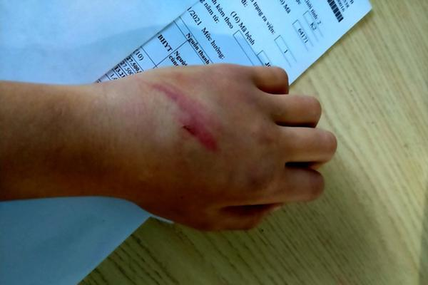 Gia Lai: Bé trai 9 tuổi nghi bị bố bạo hành dã man, rách nguyên mảng da đầu-2