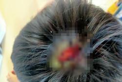Gia Lai: Bé trai 9 tuổi nghi bị bố bạo hành dã man, rách nguyên mảng da đầu