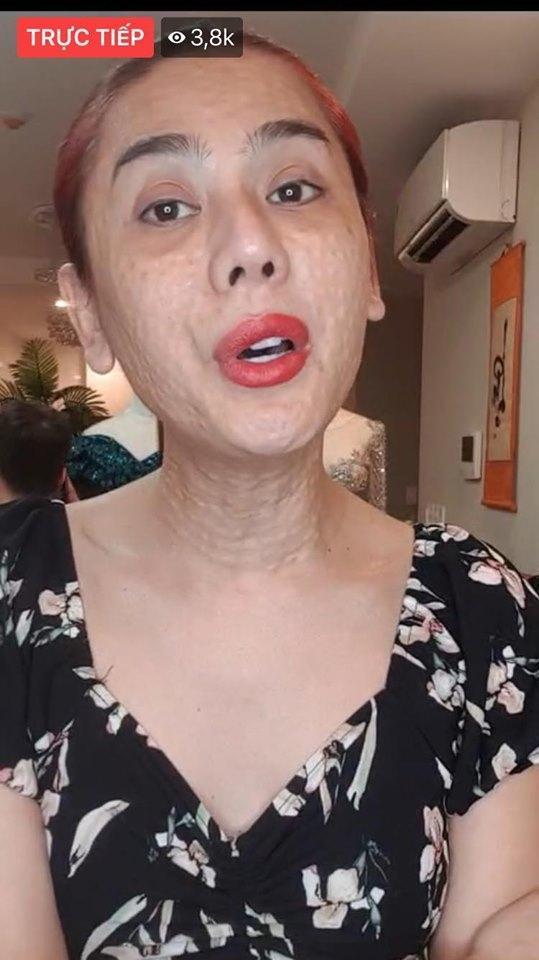 Lâm Khánh Chi gây rùng mình với vùng cổ nhăn nheo, chi chít nốt sần-6