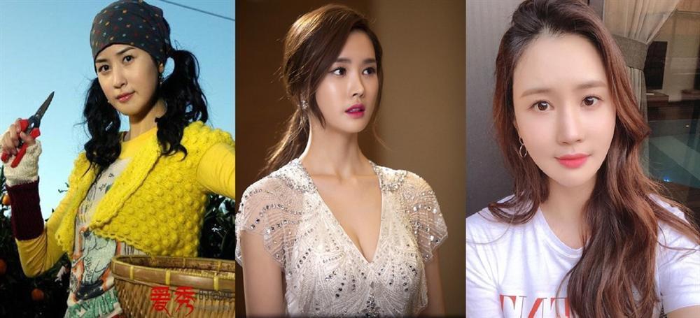 Ám ảnh ngoại hình đẩy nghệ sĩ nữ châu Á vào cuộc đua 'dao kéo'-3