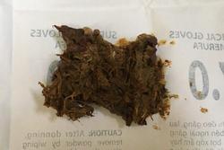 Bé 8 tuổi tắc ruột vì ăn nai khô, bò khô ở cổng trường