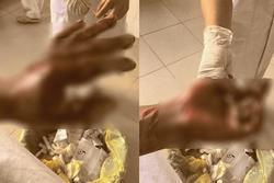 Vừa sạc điện thoại vừa chơi game, nam sinh 15 tuổi ở Bình Phước bị nổ nát tay