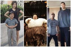 Ngoại hình diễn viên Trung Quốc - người 40 kg, người chỉ cao 1,28 m