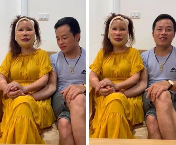 Gương mặt đơ cứng, méo lệch của cô dâu 64 tuổi sau hơn nửa năm dao kéo-1