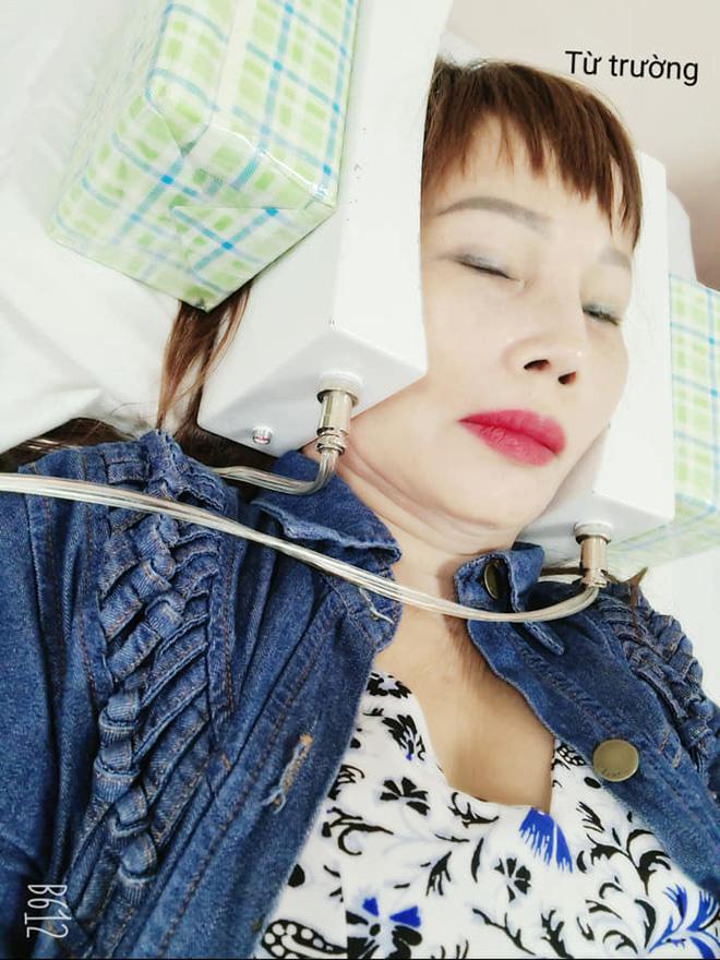 Gương mặt đơ cứng, méo lệch của cô dâu 64 tuổi sau hơn nửa năm dao kéo-6