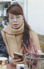 Gương mặt đơ cứng, méo lệch của cô dâu 64 tuổi sau hơn nửa năm dao kéo-5