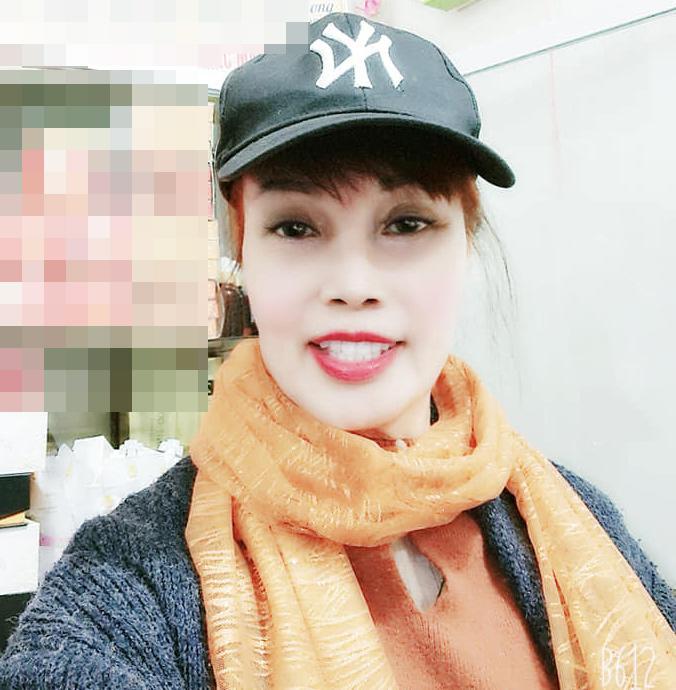 Gương mặt đơ cứng, méo lệch của cô dâu 64 tuổi sau hơn nửa năm dao kéo-4