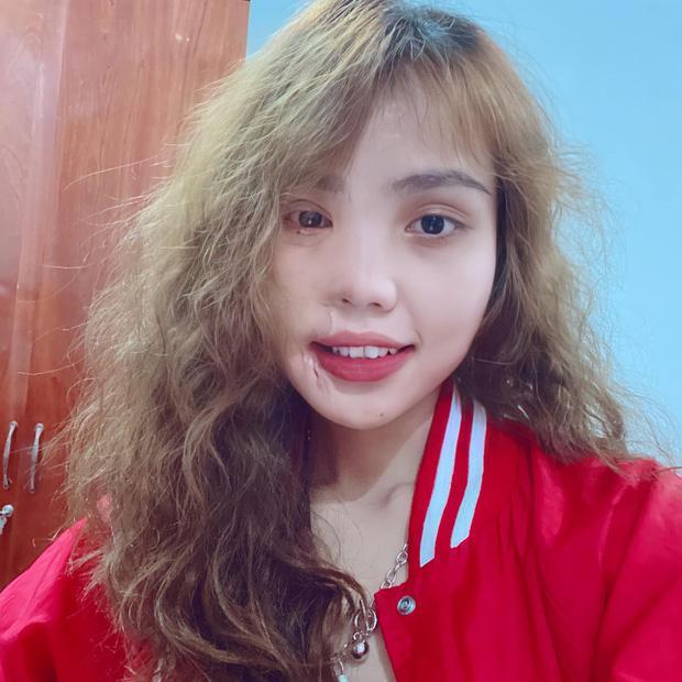 Bất ngờ ngoại hình cô gái Đà Nẵng bị chồng sắp cưới tạt axit, hủy nửa mặt-6
