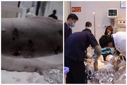 Kinh hoàng: Chó Pitbull nặng 40kg 'nổi điên' tấn công liên tiếp 2 người nhập viện