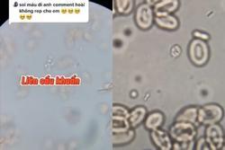 Thứ kinh dị bên trong bát tiết canh qua kính hiển vi: Xem xong đảm bảo thèm cũng chẳng dám ăn