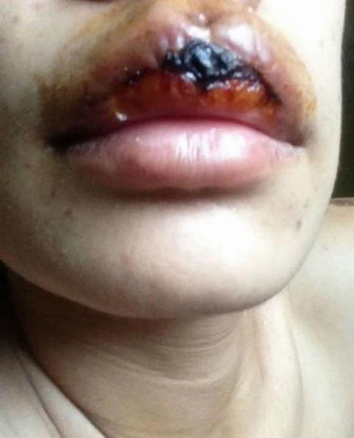 Xăm môi 2 triệu đón Tết, cô gái nhận cái kết sưng tều như mỏ chim-9