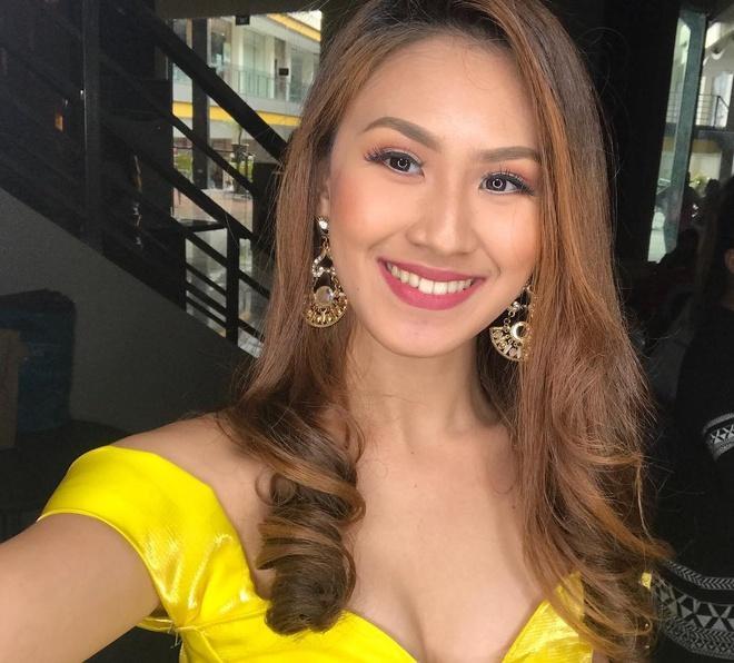 Kết luận nguyên nhân người đẹp Philippines tử vong-1