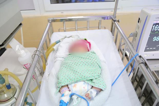 Bé sơ sinh bị bỏ rơi ngày giáp Tết trong tình trạng suy hô hấp-1
