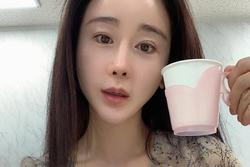Hoa hậu Hàn Ham So Won bị tố bán thuốc giảm cân giả