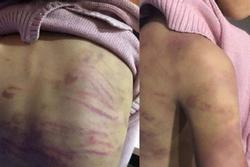 Vụ bé gái 12 tuổi nghi bị bạo hành, xâm hại tình dục ở Hà Nội: Người mẹ nghiện ma tuý