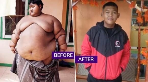 Bất ngờ ngoại hình hiện tại của cậu bé 11 tuổi nặng 382 kg-2