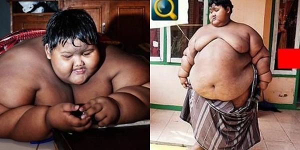Bất ngờ ngoại hình hiện tại của cậu bé 11 tuổi nặng 382 kg-1