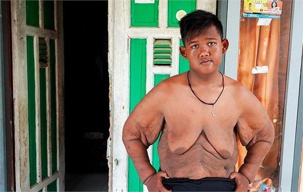 Bất ngờ ngoại hình hiện tại của cậu bé 11 tuổi nặng 382 kg-3
