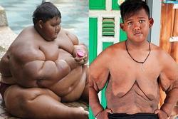 Bất ngờ ngoại hình hiện tại của cậu bé 11 tuổi nặng 382 kg