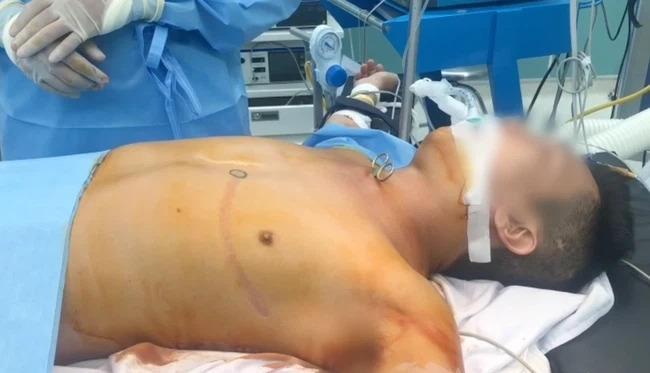 Kinh hoàng: Người đàn ông tự dùng kéo đâm xuyên cổ, thủng khí quản-1