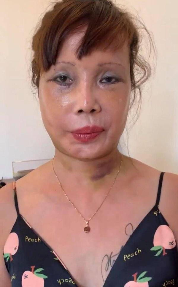 Diện mạo mới toanh của cô dâu 64 tuổi sau nửa năm dao kéo-1