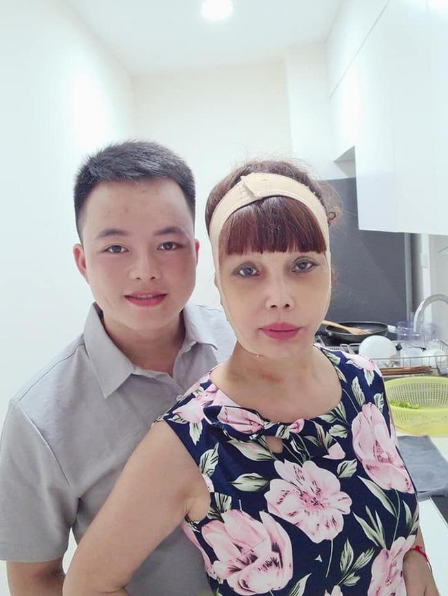 Diện mạo mới toanh của cô dâu 64 tuổi sau nửa năm dao kéo-2