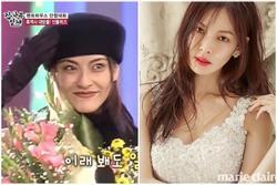 Kim So Yeon từng bị chê ngoại hình năm 15 tuổi