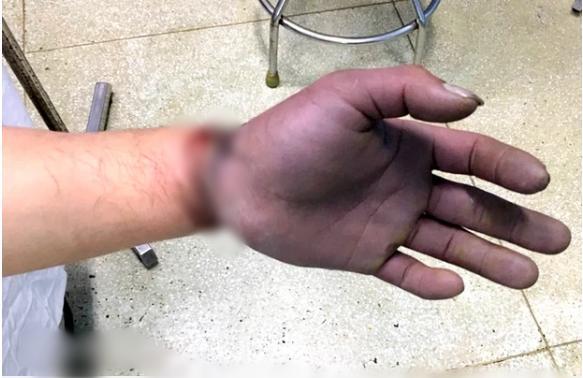 Nam thanh niên bị cuộn kẽm siết chặt, dập nát toàn bộ ngón tay-1