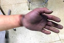 Nam thanh niên bị cuộn kẽm siết chặt, dập nát toàn bộ ngón tay