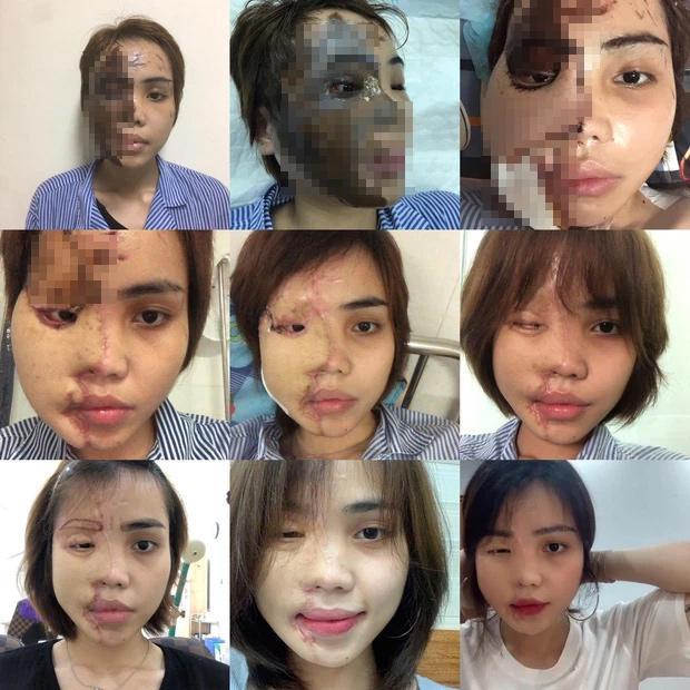 Cô gái Đà Nẵng bị chồng sắp cưới tạt axit khoe ngoại hình mới-1