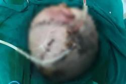 Bé trai hơn 4 tuổi bị chó nhà cắn phải phẫu thuật não