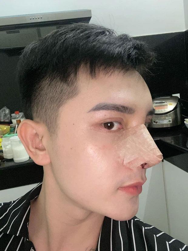 Chàng trai Hưng Yên đập mặt 20 lần đến bố mẹ cũng không nhận ra-2