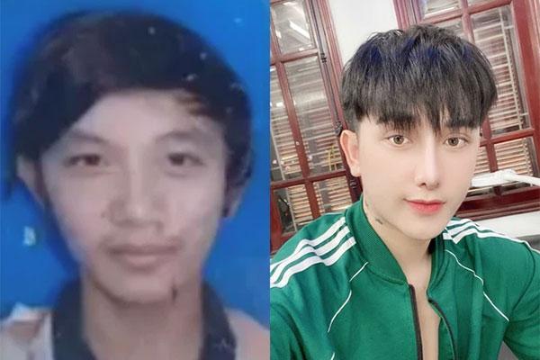Chàng trai Hưng Yên đập mặt 20 lần đến bố mẹ cũng không nhận ra-1