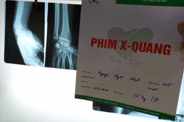 Nguyễn Ngọc Mạnh cứu bé gái rơi từ tầng 13 bị rạn xương ngón tay, chưa thể lái xe-3