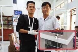 Nguyễn Ngọc Mạnh cứu bé gái rơi từ tầng 13 bị rạn xương ngón tay, chưa thể lái xe
