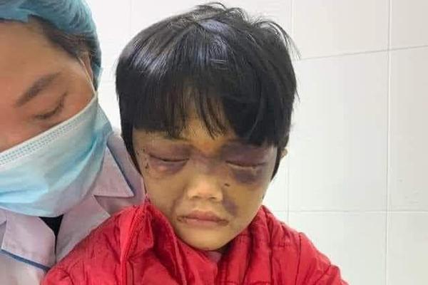 Bé gái ở Hải Dương bị mẹ đẻ đánh tím mặt, nhốt trong phòng trọ-1